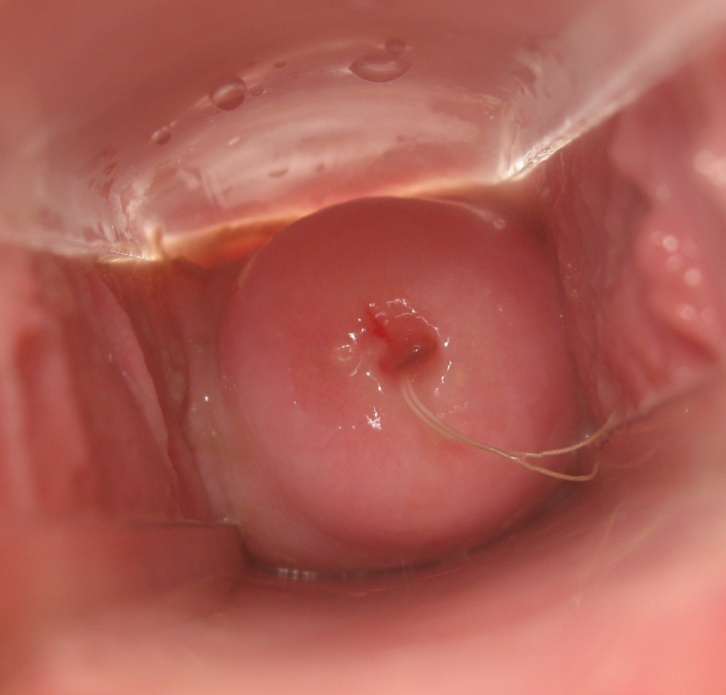 cervix sex Cervix, with the string of IUD showing. 〔image source  http://www.beautifulcervix.com/〕